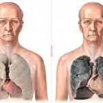 5 причин бросить курить: